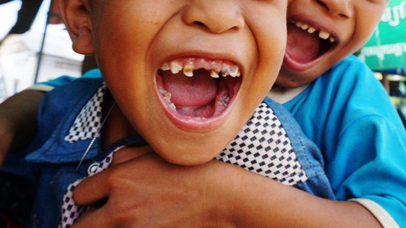 Niño, dientes